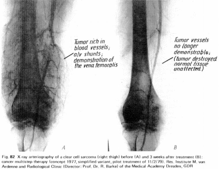vo2t-arteriograph