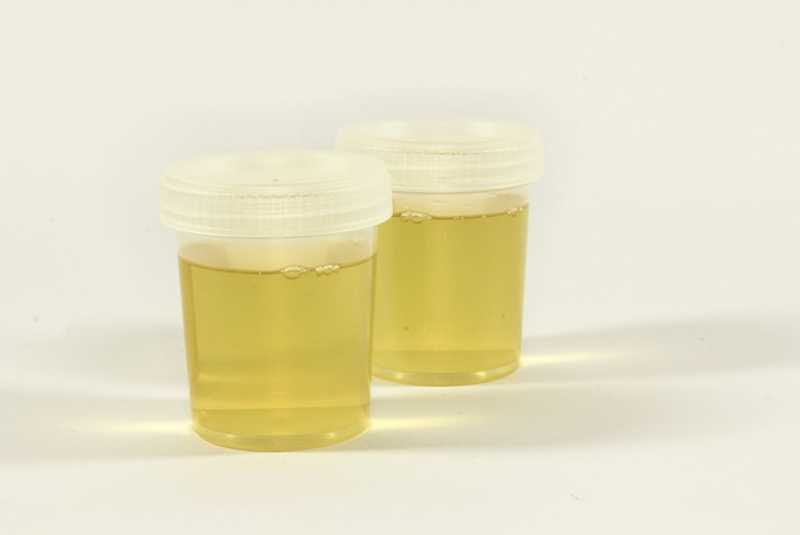 Urine Therapy